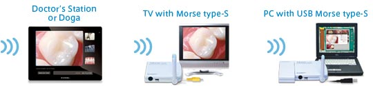 Rf SYSTEM Lab wireless dental camera and monitor system